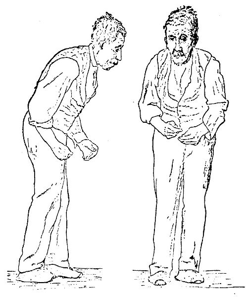 Fuente: https://commons.wikimedia.org/wiki/File:Sir_William_Richard_Gowers_Parkinson_Disease_sketch_1886.jpg